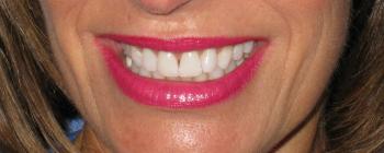 Creve Coeur Dental, Artistic Dentistry
