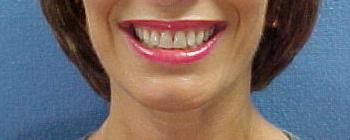 Creve Coeur Dental, Dentist 63141