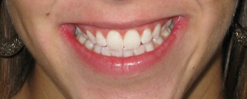 St. Louis Teeth Whitening, St. Louis Cosmetic Dentistry, Artistic Dentistry