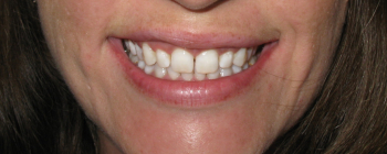 teeth whitening st louis, artistic dentistry