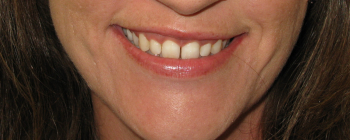 teeth whitening st. louis, artistic dentistry