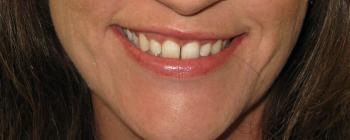 Creve Coeur Teeth Whitening, Creve Coeur Cosmetic Dentistry, Artistic Dentistry