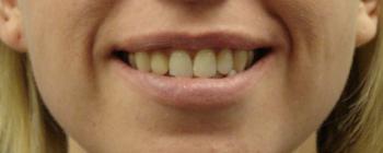 Dentist 63141, Cosmetic Dentist Creve Coeur