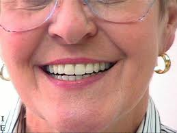 ... Than Dread Dentures, Views Them as a Chance to Design Your Own Smile