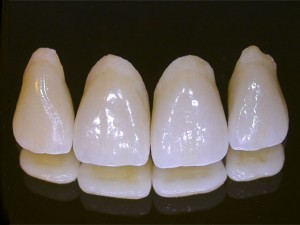 Dental Crowns St. Louis, Artistic Dentistry