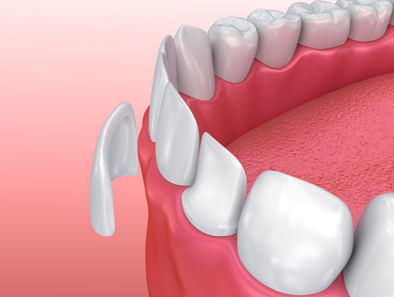 dental veneers procedure illustration