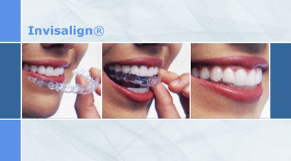 invisalign st louis, teeth straightening, Artistic Dentistry