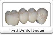 St. Louis Dental Bridges, Artistic Dentistry