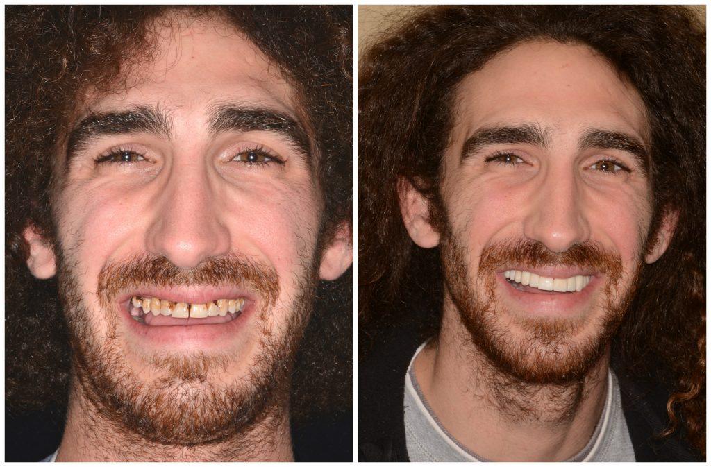 Daniel Full Face BeforeAfter