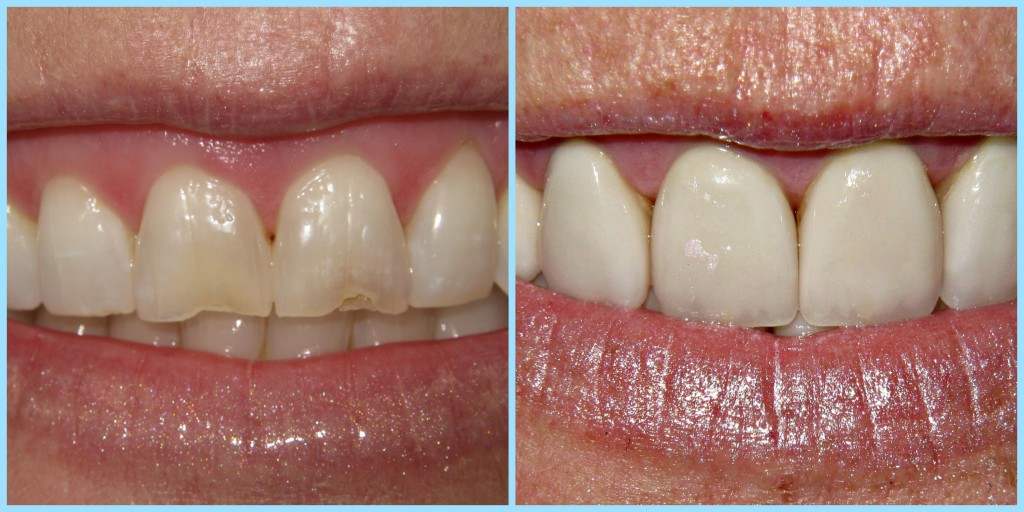 Front Crowns Before& After