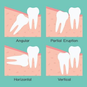 Different Ways Wisdom Teeth Can Be Positioned Under the Gum Line