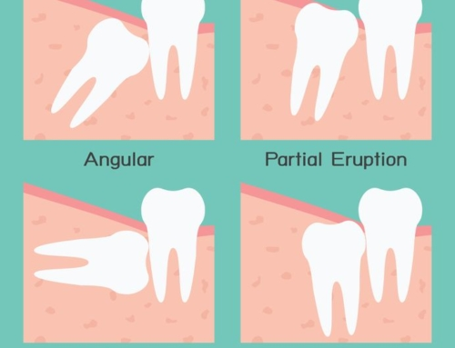 Wisdom Teeth Removal Procedure Explained