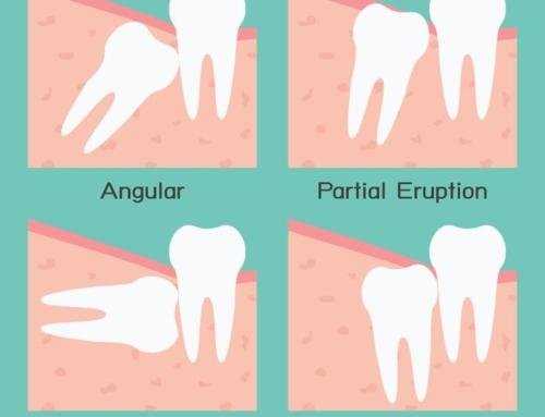 Wisdom Teeth Removal Procedure Explained
