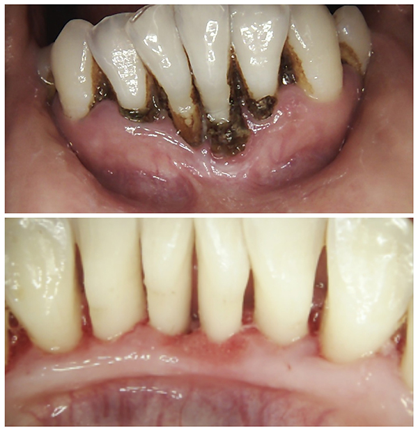patient's teeth and gums before and after gum disease treatment