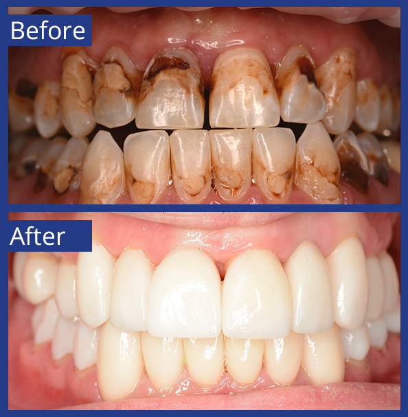 Artistic Dentistry patient before and after images of teeth 1