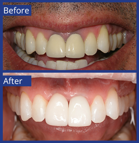 Artistic Dentistry patient before and after images of teeth 10