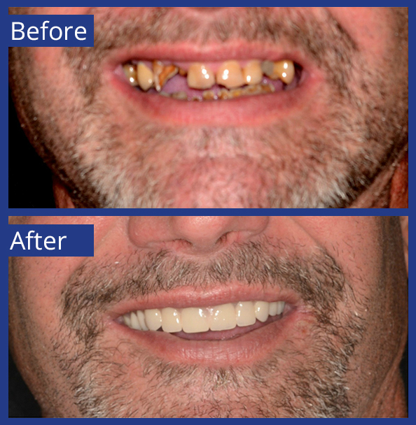 Artistic Dentistry patient before and after images of teeth 11