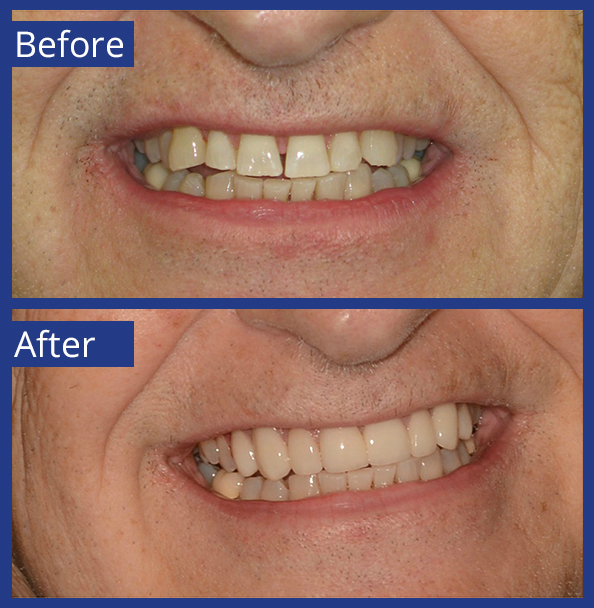 Artistic Dentistry patient before and after images of teeth 12
