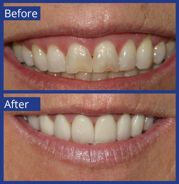 Artistic Dentistry patient before and after images of teeth 13