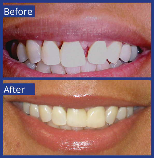 Artistic Dentistry patient before and after images of teeth 14