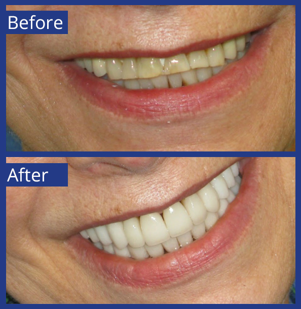 Artistic Dentistry patient before and after images of teeth 15