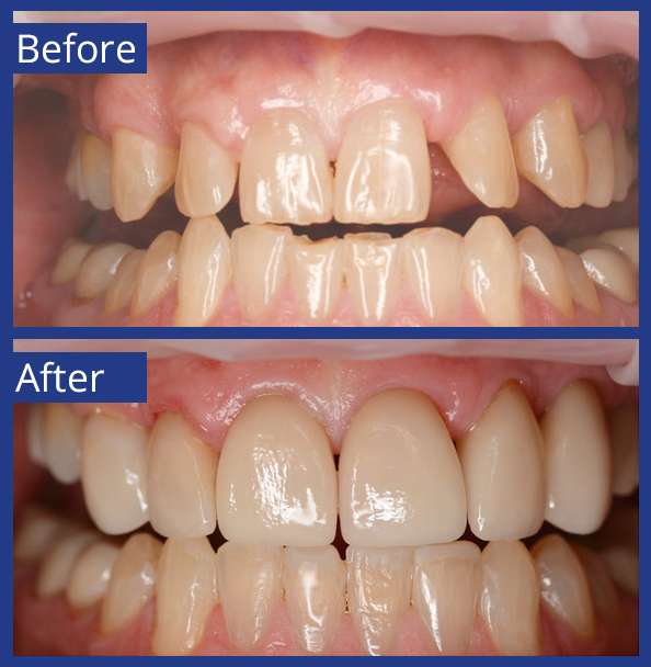 Artistic Dentistry patient before and after images of teeth 16