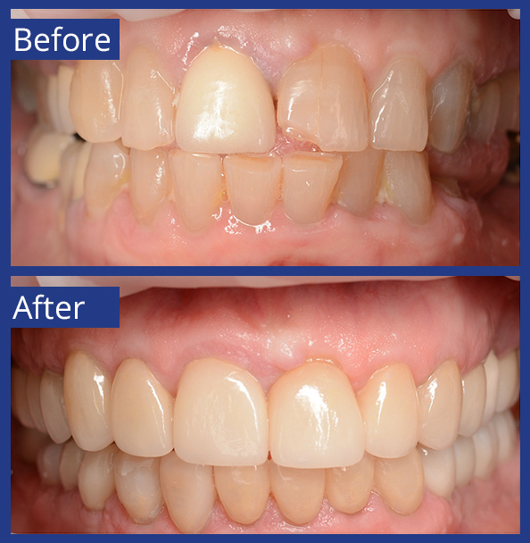 Artistic Dentistry patient before and after images of teeth 2