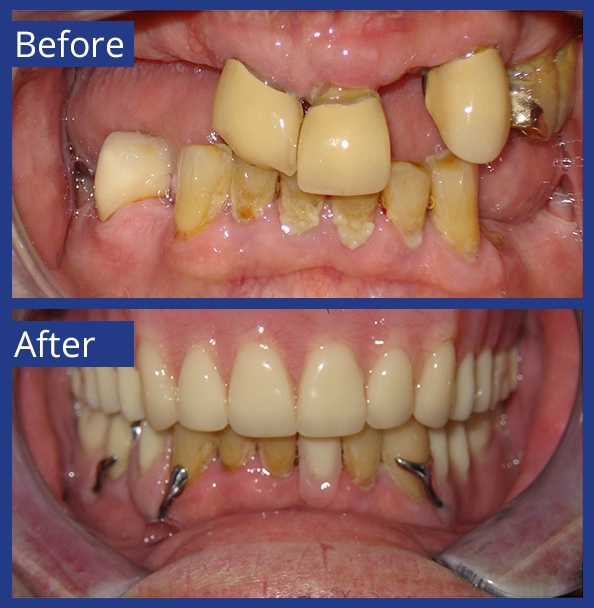 Artistic Dentistry patient before and after images of teeth 3