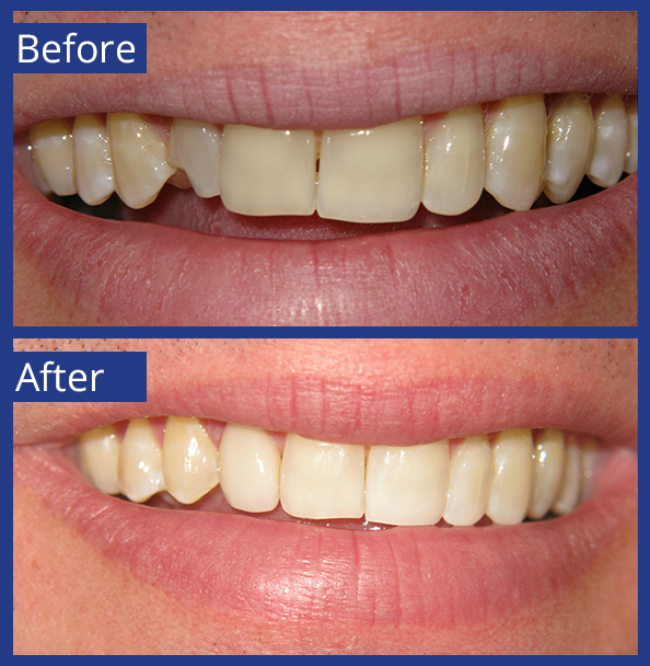 Artistic Dentistry patient before and after images of teeth 4