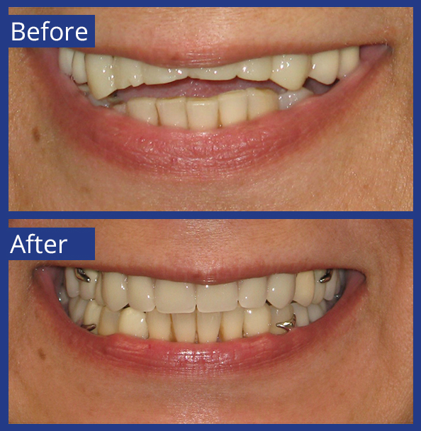 Artistic Dentistry patient before and after images of teeth 5