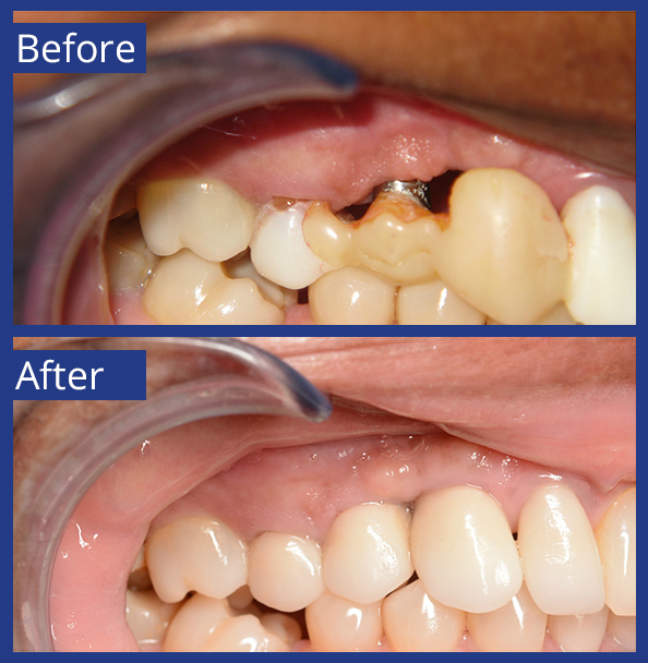 Artistic Dentistry patient before and after images of teeth 6