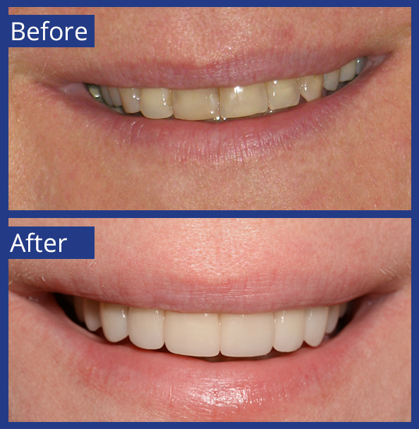 Artistic Dentistry patient before and after images of teeth 7