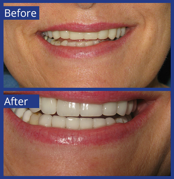 Artistic Dentistry patient before and after images of teeth 8