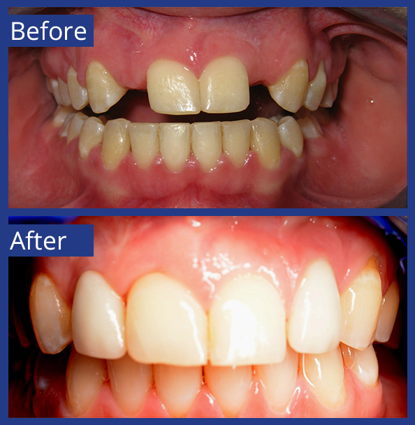 Artistic Dentistry patient before and after images of teeth 9