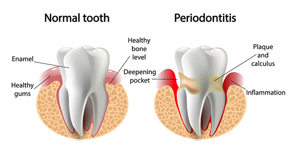 diagram of a normal tooth vs a tooth infected with periodontal disease