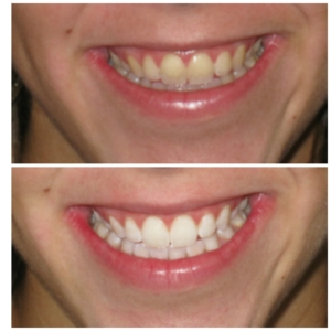New Patient Cleaning Exam Professional Teeth Whitening Offer